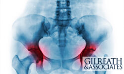 Hip Replacements Cost Johnson & Johnson $1 Billion in Defective Product Lawsuits